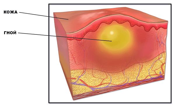 Гнойный абсцесс под кожей на ягодице